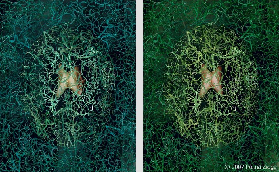 http://www.polina-zioga.com/files/gimgs/th-41_41_brain-angiography2.jpg